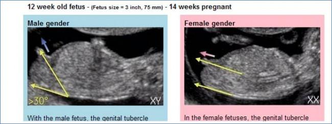 geslachtsbepaling zwangerschap