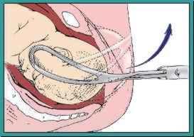 Geburtszange