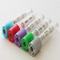 Tests Tijdens De Zwangerschap NIPT-test