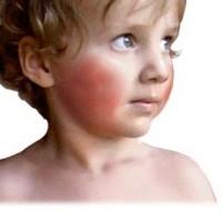 Kinderziektes Vijfde-ziekte