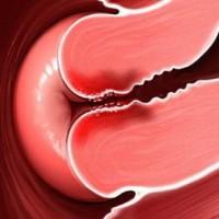 Vaginale Infecties Tests Voor De Zwangerschap