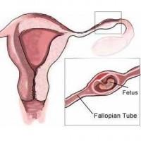 Verlies Buitenbaarmoederlijke-zwangerschap